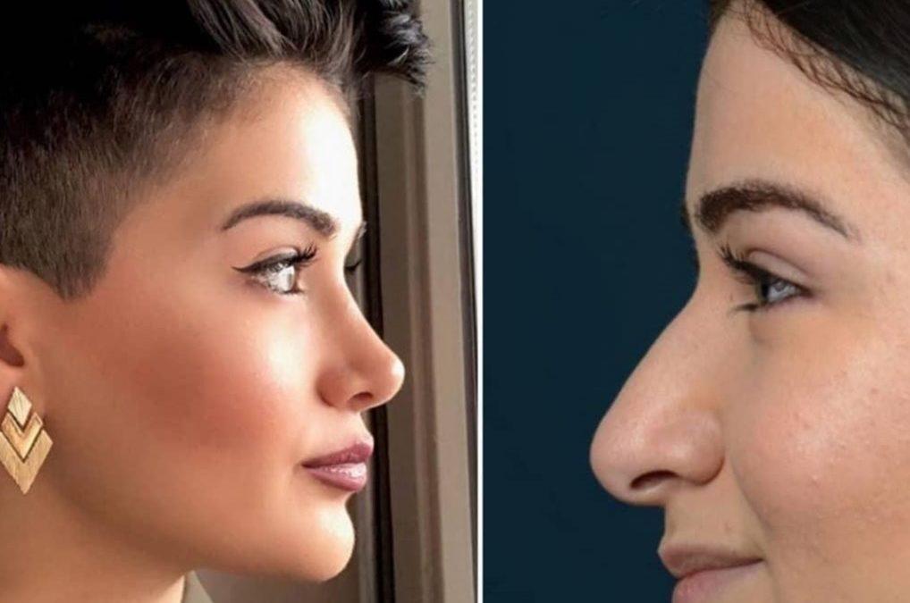 بینی عروسکی – جراحی بینی عروسکی