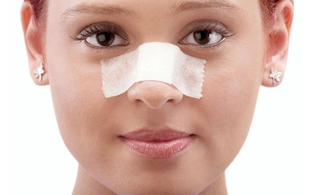 کاهش ورم بعد از جراحی بینی